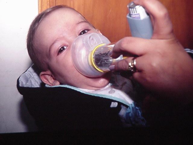 El pico máximo de casos de bronquiolitis se espera para fin de mes