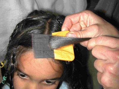 Advierten serios riesgos por el uso de pulguicidas para combatir los piojos