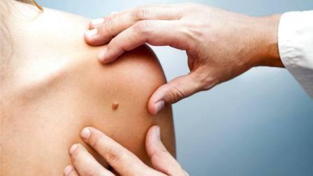 LALCEC estará en Vicente López para prevenir el cáncer de piel y el melanoma