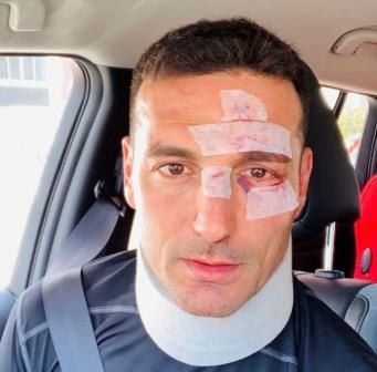 Scaloni herido levemente en la cara tras ser atropellado en Mallorca mientras andaba en bicicleta