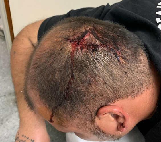 Militantes del Frente de Todos de San Isidro fueron brutalmente agredidos en Boulogne
