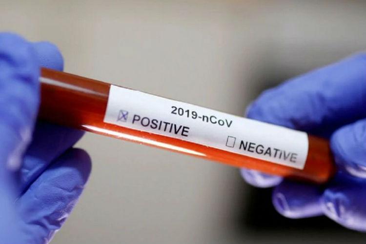 Confirmaron en San Fernando dos nuevos casos de Coronavirus